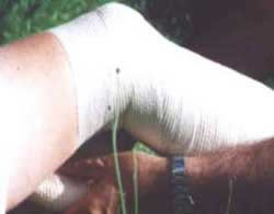 3 - THE WIDE CREPE BANDAGE IS